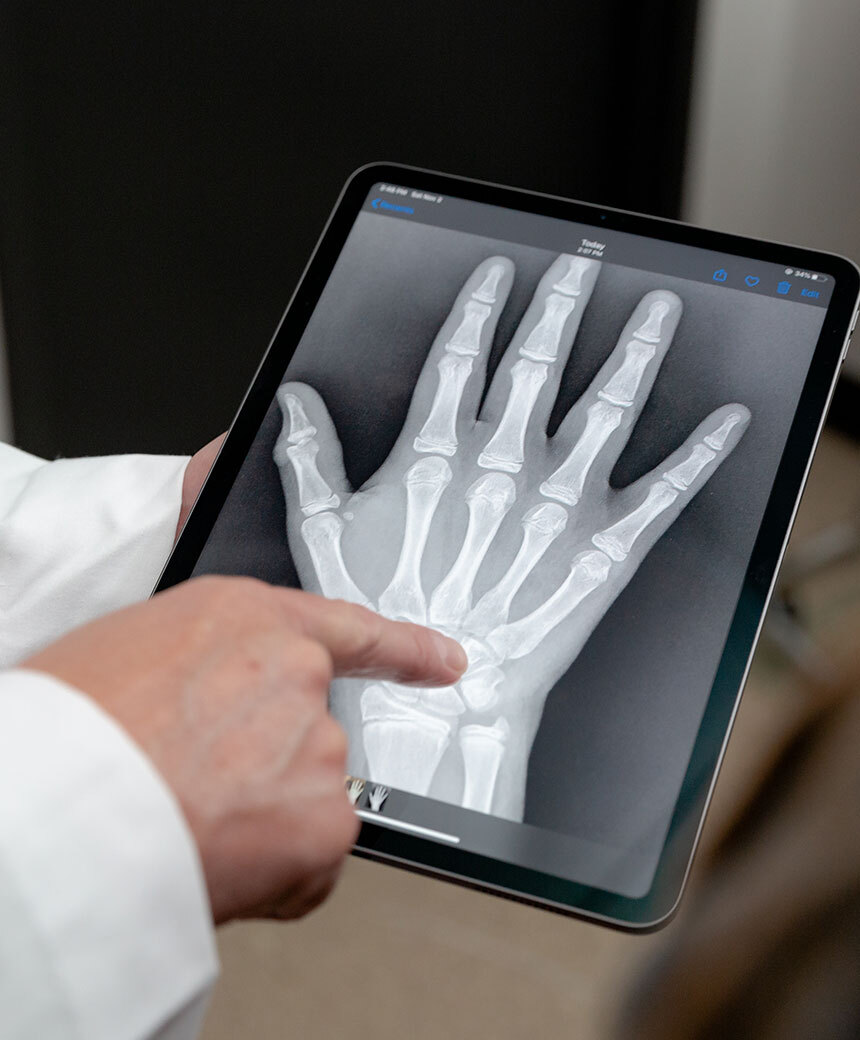 Doctor pointing to x-ray